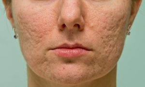 reduce acne scars with clinical skincare treatments