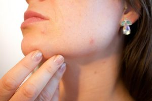acne and health skin deep professional