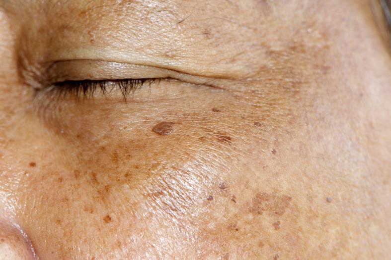 melasma treatment skin deep professional