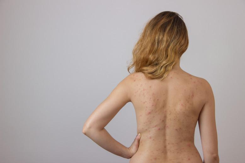 back acne treatments skin deep alameda